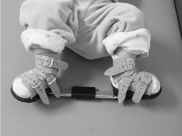 Is the bar or rod is necessary in clubfoot braces?