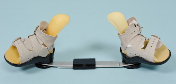 What is tenotomy in clubfoot treatment and is it mandatory?