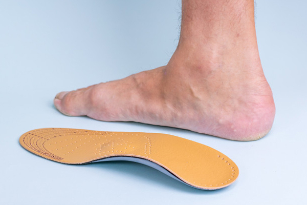 What is flat foot or Vertical Talus and it's Treatment?